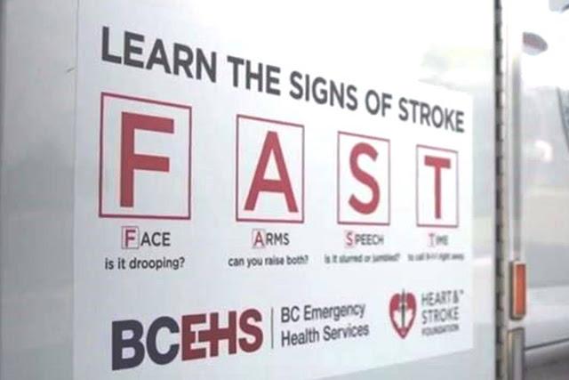FAST, stroke