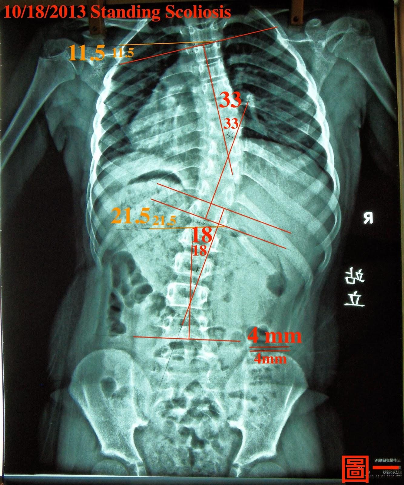 脊椎側彎矯正案例8 - 10歲治療七週成果:33~15.5度 - 閻曉華脊骨神經醫學網