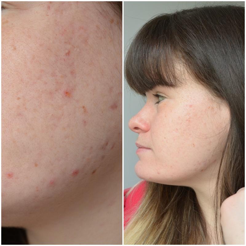 bilan, 1 an de traitement contre l'acné côté gauche comparaison
