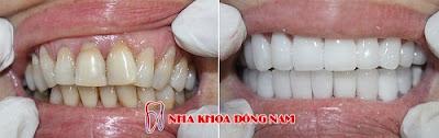 những điều cần biết về bọc răng sứ -14