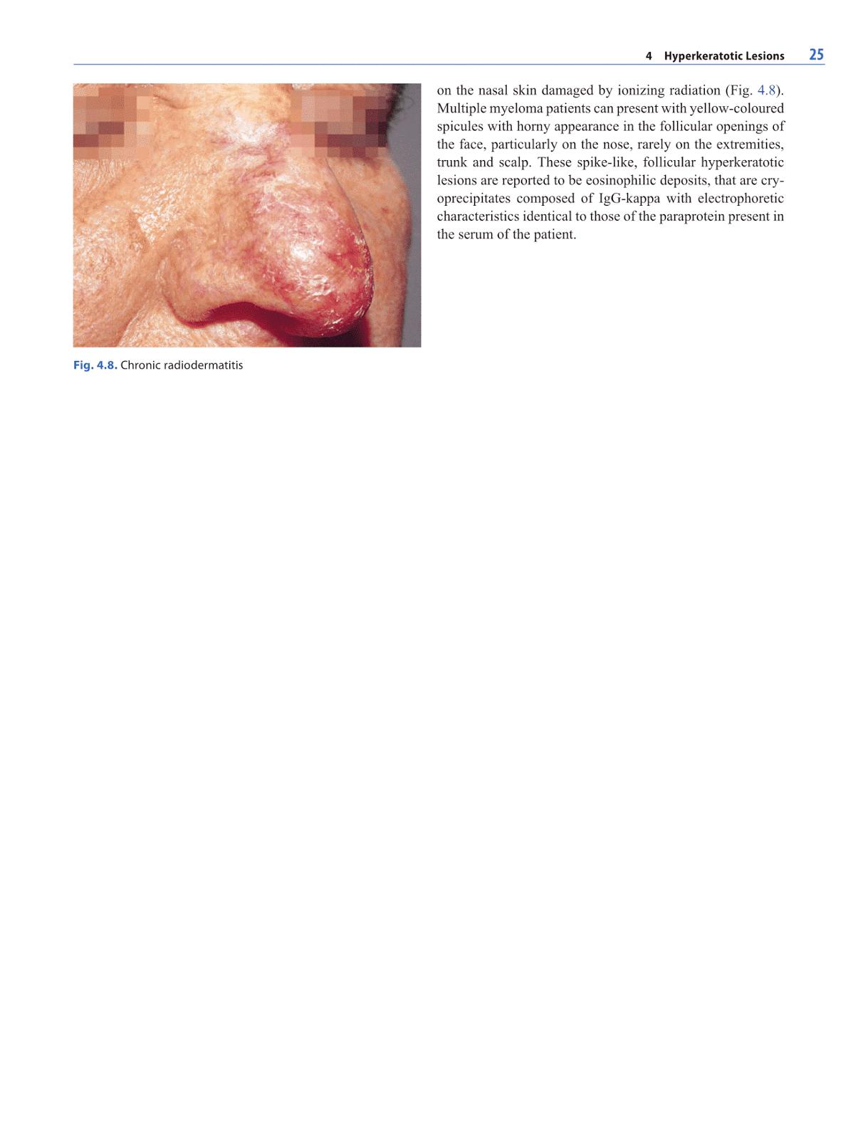 Otolaryngology by Alexandros G Sfakianakis: Lesions of the Nose
