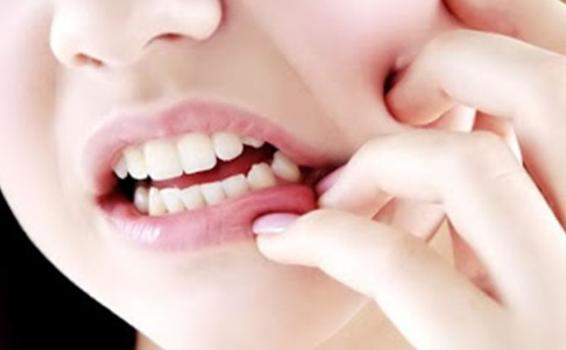 Beberapa Tips Ini yang Sudah Terbukti Sangat Ampuh Mengatasi Sakit Gigi
