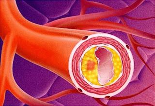Как диабет 2го типа вылечить можно