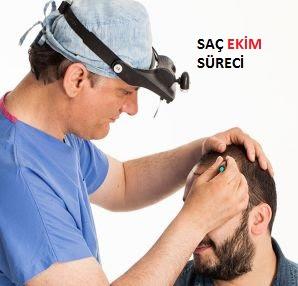 sac-ekimi-kimler-tarafindan-yapilmali