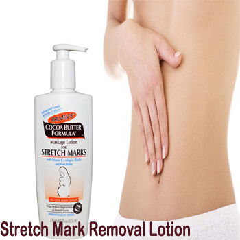 Stretch Marks Removal Cream In Pakistan