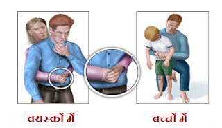 Choking First Aid technique in Hindi.