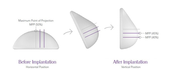 Premium Breast Implants at Breast Surgery Specialized Clinic