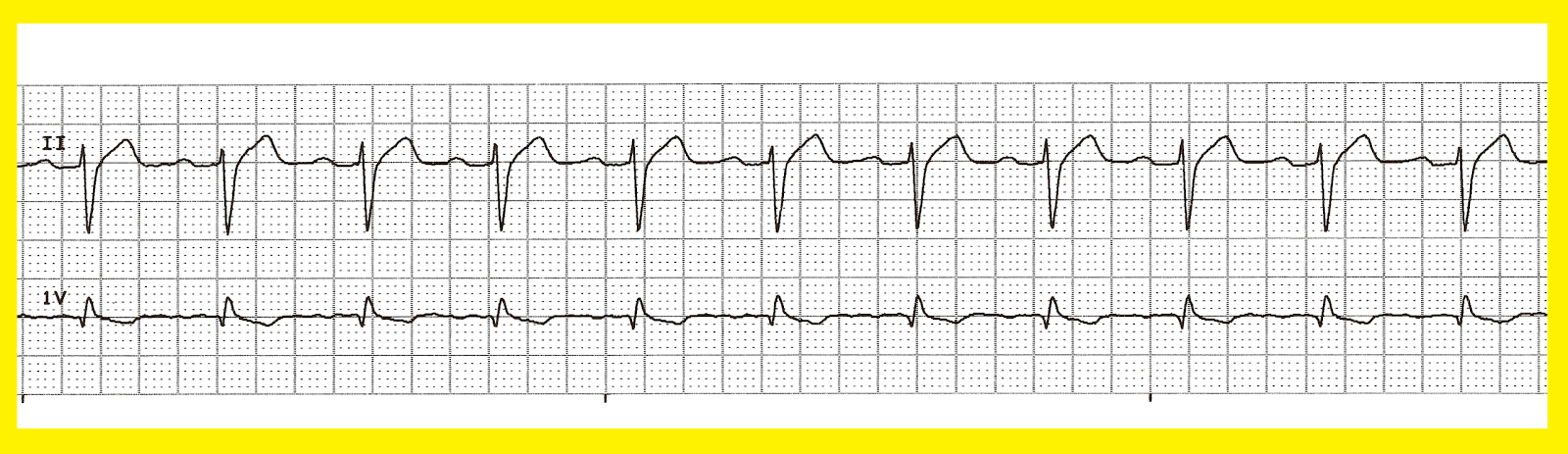 Ekg reading strip