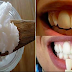 Remove Tartar and Plaque Permanently Using A Very Cheap Ingredient