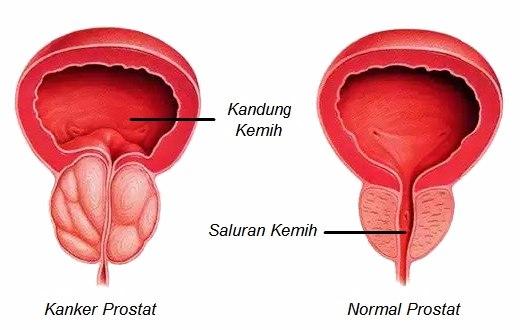 Beberapa gejala kanker prostat di usia mudah berikut ini seringkali diabaikan karena ketidaktahuan. Untuk itu, kenali ciri - cirinya di sini sebelum terlambat.