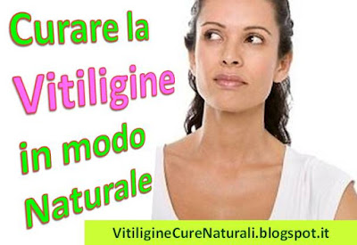 malattia-della-pelle-vitiligine-come-curare-macchie-bianchie