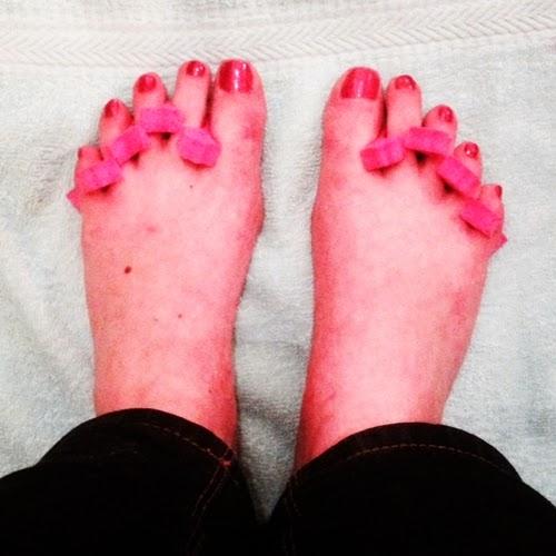 operere bort tånegl