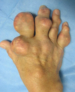 Duzallo Cost, Side effects, Dosage, Uses for Gout