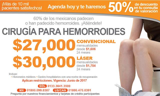 Hemorroidectomia-cirugia para hemorroides almorranas en Guadalajara Mexico