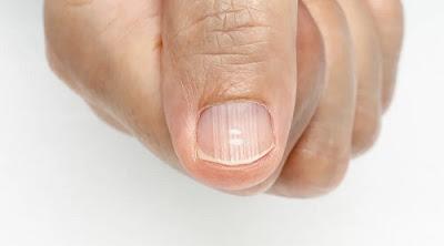causes des lignes sur mes ongles
