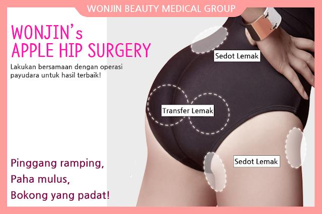 Tubuh S Line Sempurna Di Wonjin Beauty Medical Group