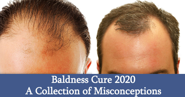 Baldness Cure 2020