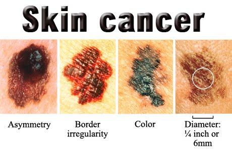 The National Cancer Institute Non Melanoma Skin Cancer