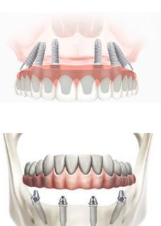 Proteza fixă pe implanturi dentare de la Dental Premier îți redă zâmbetul în doar 24 de ore!