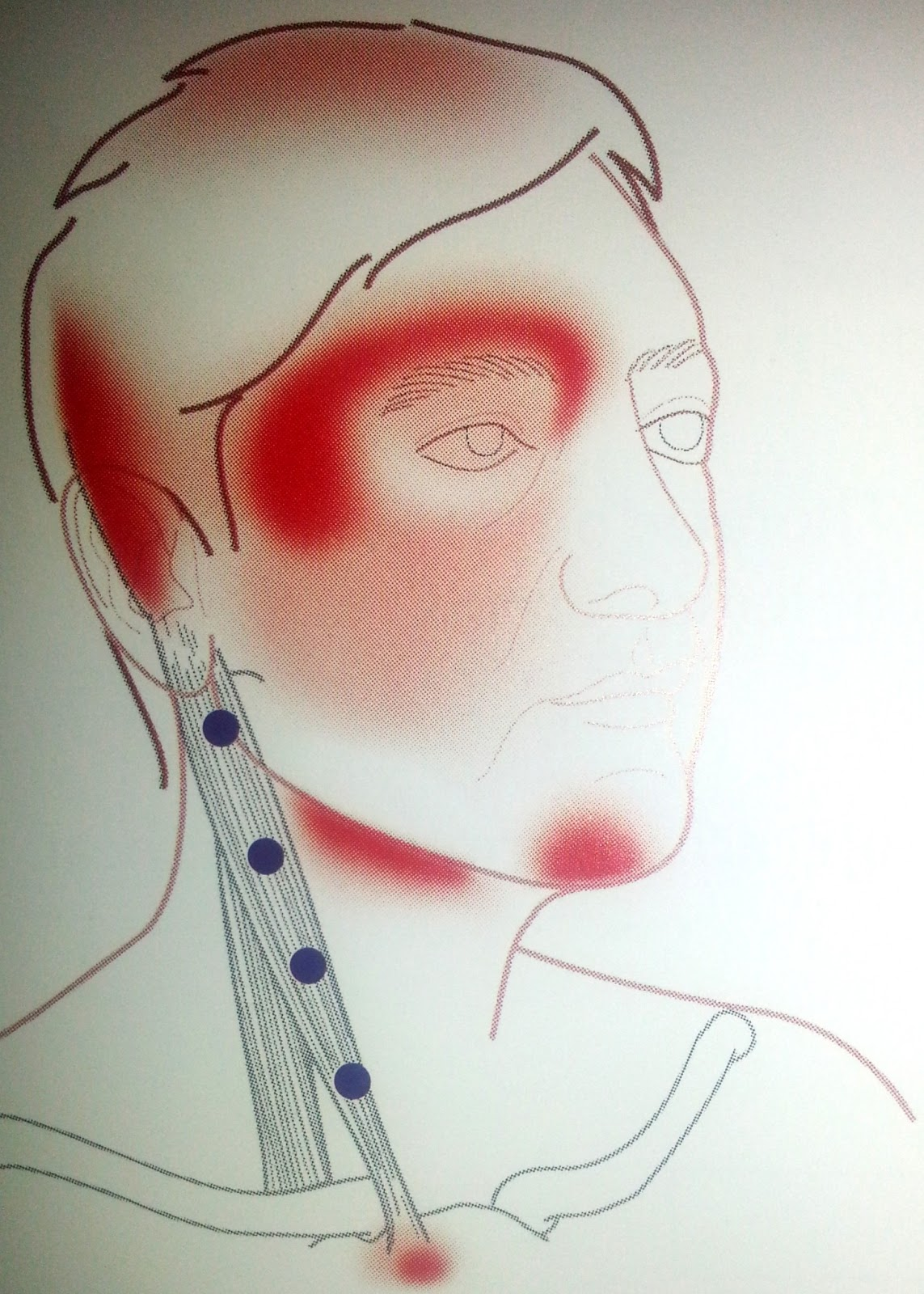 fibromyalgia pain diagram onan generator remote start stop switch wiring paul skidmore therapies