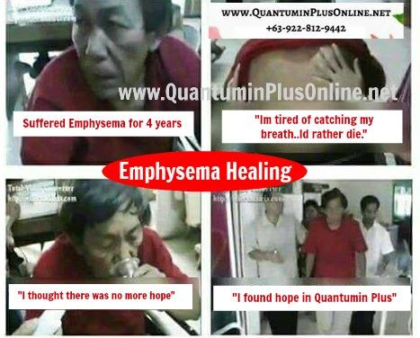 Emphysema Healing - Quantumin Plus MiraminQ