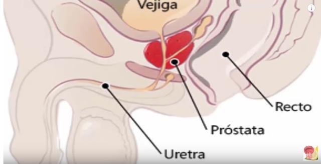porque una próstata agrandada causa ed