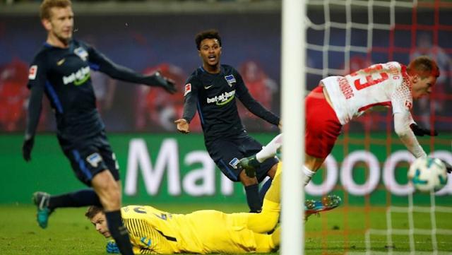 Tangan Pemain RB Leipzig Patah Usai Mencetak Gol
