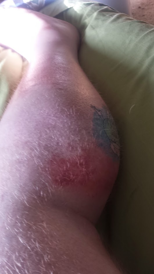Cellulitis (warning, graphic photos in this post)