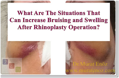 Bruising And Swelling After Nose Job - Rhinoplasty Recovery Information - How To Perform A Cold Spplication After Nasal Aesthetic Operation? - Nose Aesthetic Operation And Season Selection In Istanbul - Nose Re-Shaping In İstanbul - Nose Job Operation In İstanbul - Rhinoplasty In Istanbul - Natural Nasal Aesthetic Operation - Aesthetic Nose Surgery - A Herbal Product Obtained From Arnica Montana Flower: Arnica Gel / Arnica Cream - Drugs That Increase Bleeding Risk When Used Before Nose Aesthetic Surgery - What Are The Benefits Of Massage And Massage After Nose Aesthetic Surgery? - Summary Of What To Do To Reduce Edema And Bruising After Nasal Aesthetic Operation! - Hilotherapy System (Hilotherm): Ideal Cold Application Method After Nose Aesthetics - Nose Aesthetic Operation And Season Selection In Istanbul - What Can Be Done In Order To Reduce Bruising And Swelling Before Nose Job Operation? - What Are The Situations That Can Increase Bruising And Swelling After Rhinoplasty Operation? - Cold Sterilized Serum And Ice Application On The Nose During Rhinoplasty Operation - Why Does Edema And Bruising Are Seen After Nose Job Surgery?