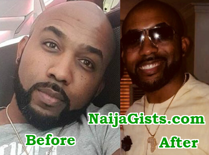 banky w post surgery look