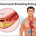 Hiperkolesterolemia Definisi Penyebab Dan Pengobatan Serta Pencegahan Hiperkolesterolemia Menurut Ilmu Kedokteran