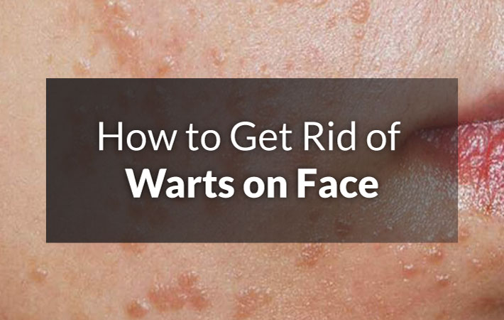 How To Remove Warts On Face