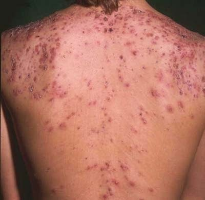How To Get Rid Of Back Acne Scars Naturally