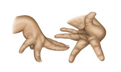 Hemiballism Definition, Symptoms, Causes, Treatment  Hemiballismus vs Chorea