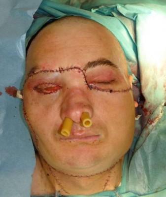 Мужчине пересадили лицо