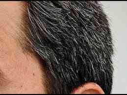 اسباب ظهور الشعر الابيض