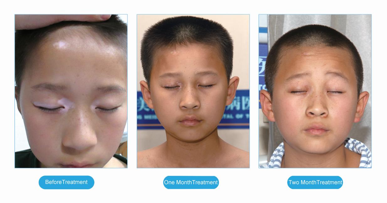 Chines Medicine Treatment For Vitiligo How To Cure