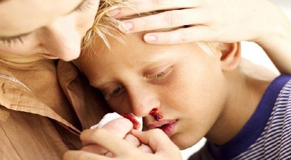 Penyebab Anak Mimisan dan Cara Mengatasinya
