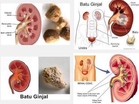 Bahaya Penyakit Batu Ginjal