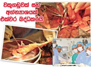 Anuradhapura General Hospital doctors perform miraculous surgery