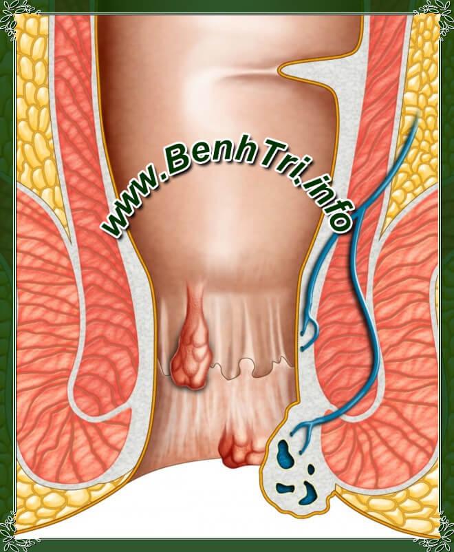 Bệnh trĩ nội và bệnh trĩ ngoại