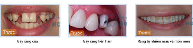 Bọc sứ cho răng có thực sự tốt không?