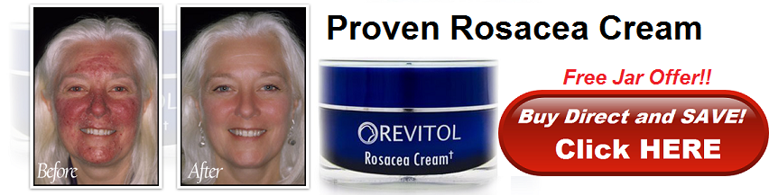 Revitol Make Beauty Revitol Acnezine Rosacea Cream In Canada