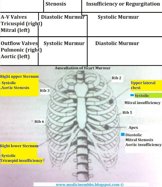 MBBS Medicine (Humanity First): Heart Murmurs