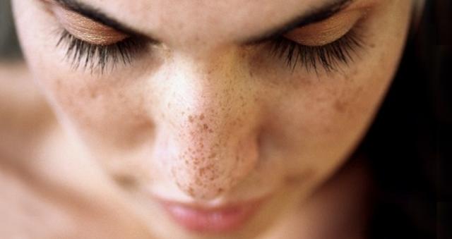 Beauty Tips ~ आयुर्वेदिक नुस्खे से मुँह के झाइयों के लिए उपचार