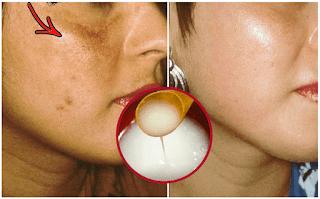 Préparer une crème naturelle pour blanchir la peau dans un court laps de temps