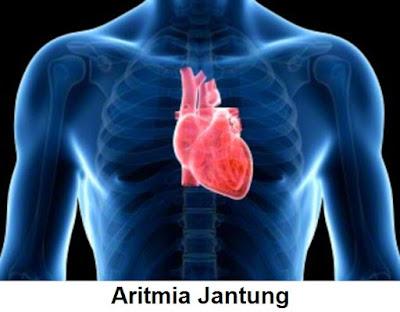 Penyakit Aritmia Jantung: Penyebab, Gejala Dan Pengobatan