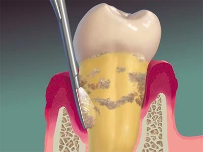 """Résultat de recherche d'images pour """"detartrage surfaçage dentaire"""""""