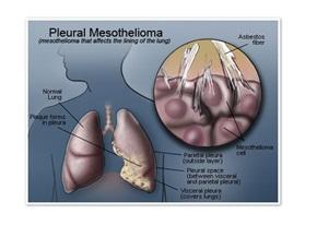 Malignant Mesothelioma of Pleura