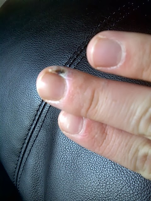 Fix Lovely Two Dollar Wart Remover